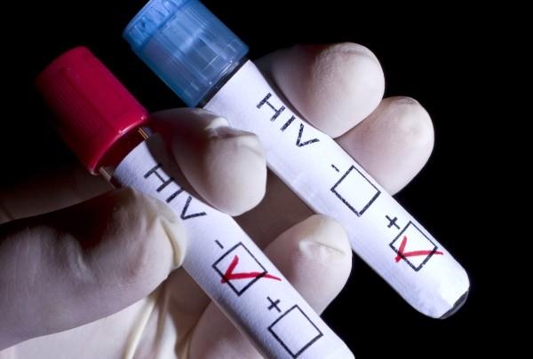 HIV/SIDA și angajarea la un loc de muncă