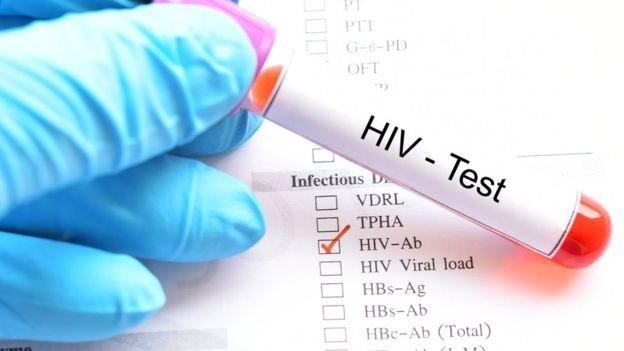 Australia a întrerupt dezvoltarea unui vaccin anti-COVID după rezultate fals pozitive la HIV