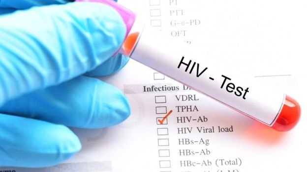 Trei descoperiri majore în prevenirea HIV