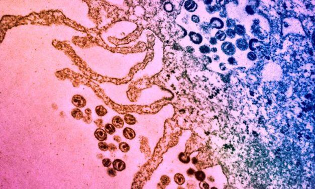 Molecula antibiotică permite sistemului imunitar să omoare celulele infectate cu HIV
