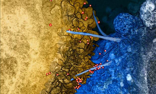 Studiu: O proteină nouă ar putea împiedica replicarea virusului HIV în creier