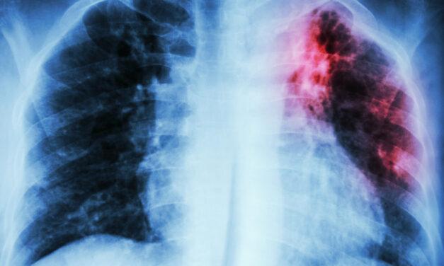 Profilaxia TBC în rândul persoanelor cu HIV